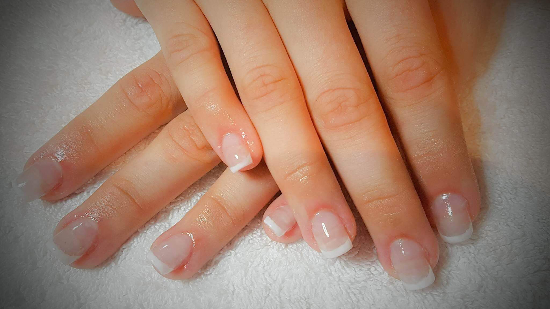 treatment-nails